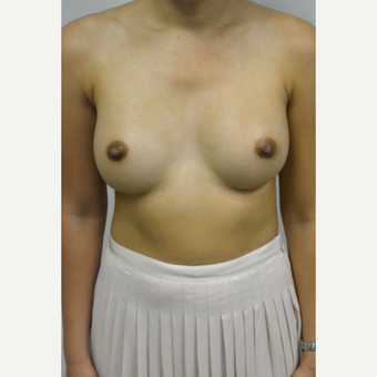 35-44 year old woman treated with Breast Implants after 3005059