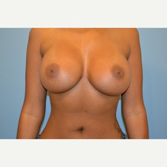 Breast Implants after 2382744