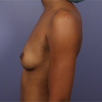 25-34 year old woman treated with Breast Augmentation before 3226387