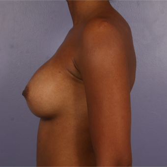 25-34 year old woman treated with Breast Augmentation after 3226387