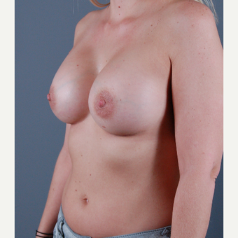 25-34 year old woman treated with Breast Augmentation after 3310831