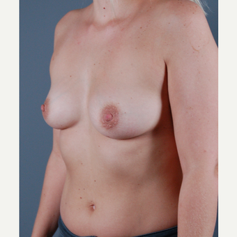 25-34 year old woman treated with Breast Augmentation before 3310831