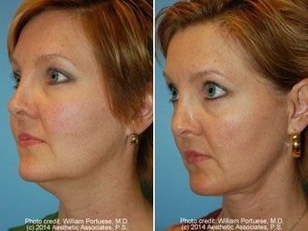 Neck Liposuction before 212296