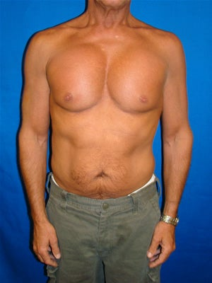 Pectoral Implants after 95038