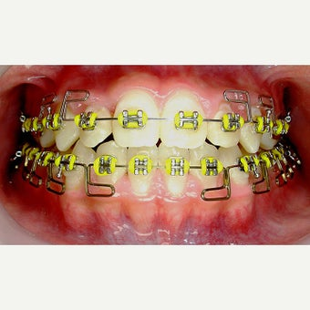 17 or under year old treated with Braces after 1706848