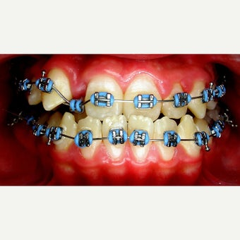 17 or under year old treated with Braces before 1706848