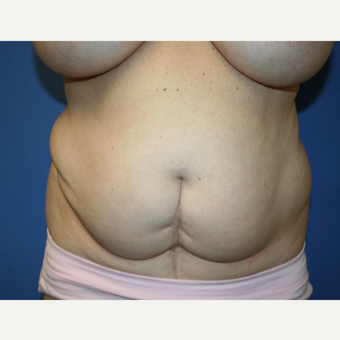 45-54 year old woman treated with Tummy Tuck before 2993947