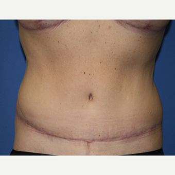 45-54 year old woman treated with Tummy Tuck after 2993947