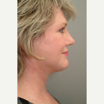 55-64 year old woman treated with Neck Lift after 3764337