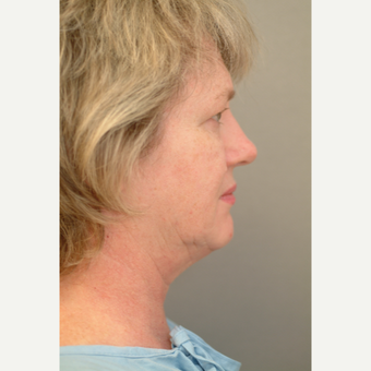 55-64 year old woman treated with Neck Lift before 3764337