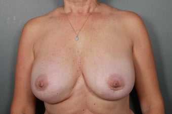 Breast Implant Removal after 1339479