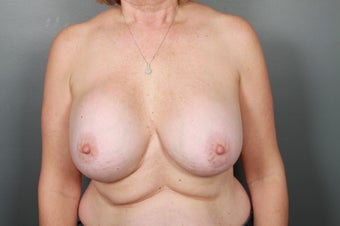 Breast Implant Removal before 1339479