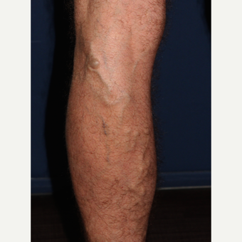45-54 year old man treated with Sclerotherapy