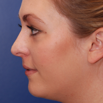 18-24 year old woman treated with Rhinoplasty before 3624115