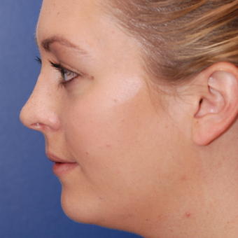 18-24 year old woman treated with Rhinoplasty after 3624115