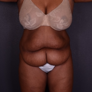 45-54 year old woman treated with Tummy Tuck before 3069913