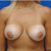 35-44 year old woman treated with Breast Augmentation after 3299276