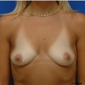35-44 year old woman treated with Breast Augmentation before 3299276