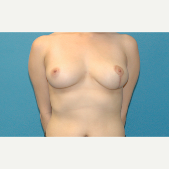 30 year old woman treated with unilateral Breast Lift