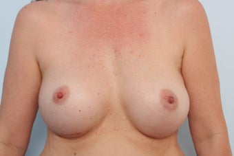 Breast Implant Exchange after 2966170
