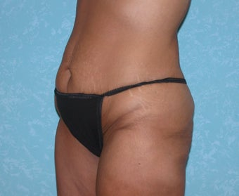 Circumferential Body Lift 857580