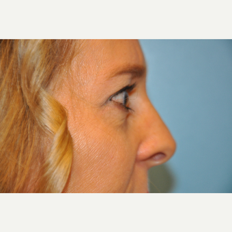 35-44 year old woman treated with Upper and Lower Eyelid Surgery after 3075347