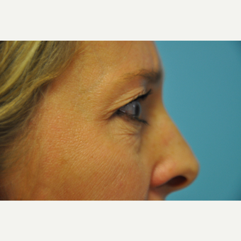 35-44 year old woman treated with Upper and Lower Eyelid Surgery before 3075347