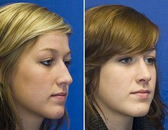 how to fix broken nose cartilage