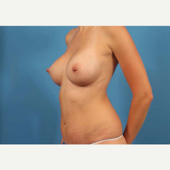 25-34 year old woman treated with Tummy Tuck after 3787169