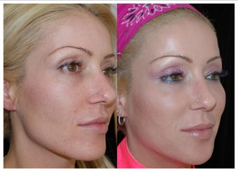 Before and After Sculptra after 1031290