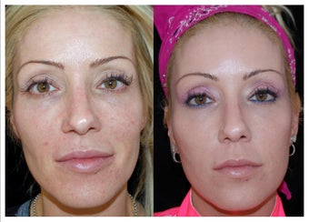Before and After Sculptra before 1031290