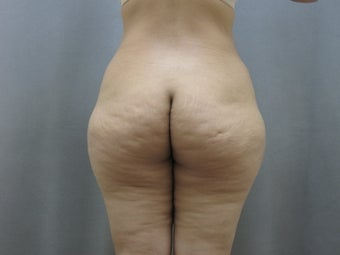 45  year old woman presented for improvement of her contour.  before 1111736