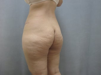 45  year old woman presented for improvement of her contour.  1111736