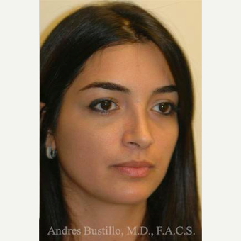 31 year old woman treated with Rhinoplasty after 3460855