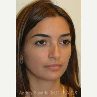 31 year old woman treated with Rhinoplasty before 3460855