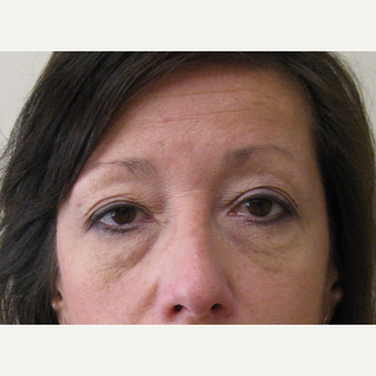 45-54 year old woman treated with Eyelid Surgery before 3439683