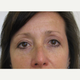 45-54 year old woman treated with Eyelid Surgery after 3439683