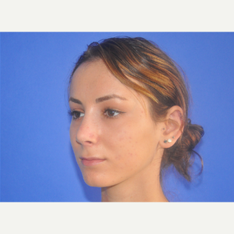 18-24 year old woman treated with Rhinoplasty after 3240060