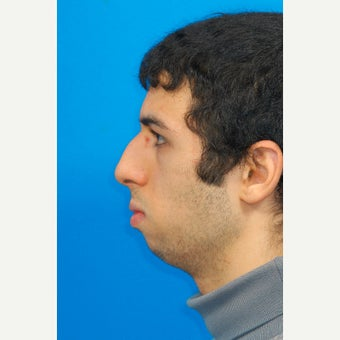 25-34 year old man treated with Chin Surgery and Jawline Enhancement before 2344034