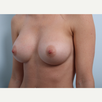 Breast Augmentation after 3345950