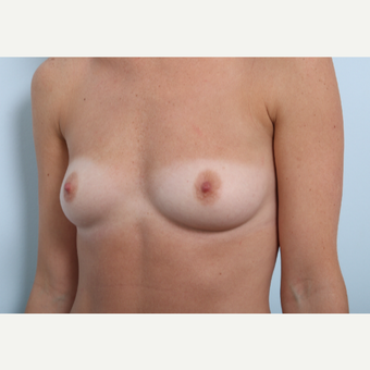 Breast Augmentation before 3345950
