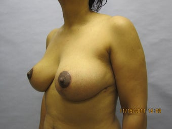Breast Lift by Dr. Lyle, Plastic Surgeon, Raleigh, North Carolina 1005192