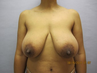 Breast Lift by Dr. Lyle, Plastic Surgeon, Raleigh, North Carolina before 1005192