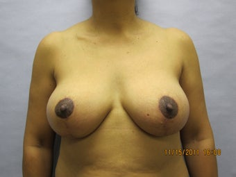 Breast Lift by Dr. Lyle, Plastic Surgeon, Raleigh, North Carolina after 1005192