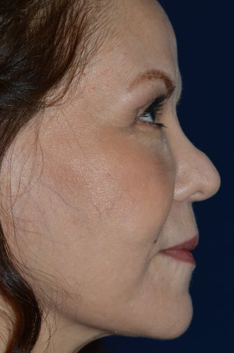 Non Invasive Rhinoplasty before 1363726