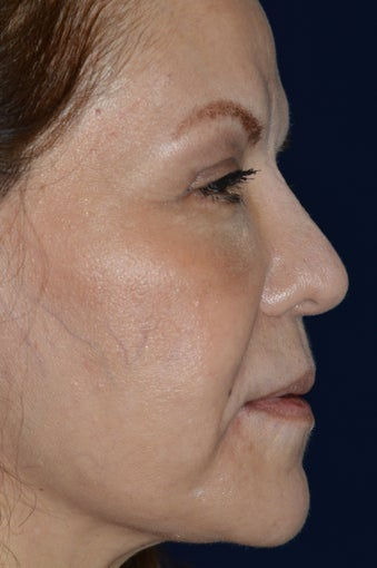Non Invasive Rhinoplasty after 1363726