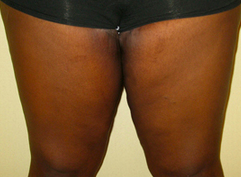 Thigh Lift after 976108