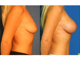 Fat Transfer Breast Augmentation after 1228050