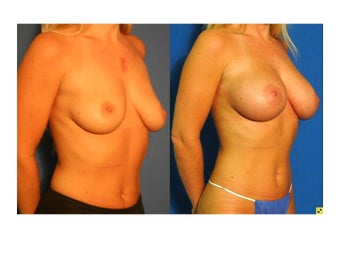 Fat Transfer Breast Augmentation before 1228050