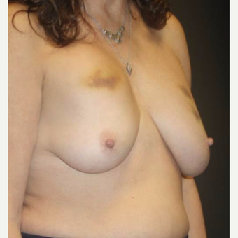 55-64 year old woman treated with Breast Implant Removal before 3458131